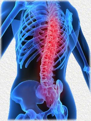Остеохондроз ребер симптомы и лечение